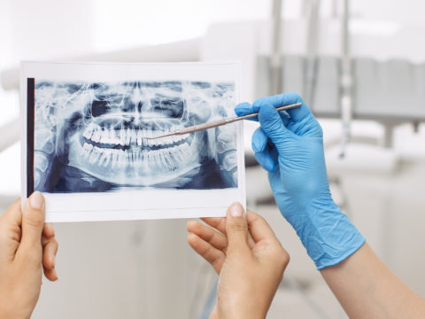 Dentist Showing X-ray Image To Patient. People, Medicine, Stomat